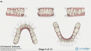 Clinical check results showing my teeth before invisalign